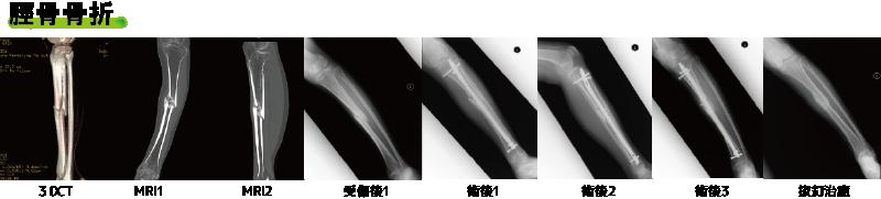 脛骨骨折CT